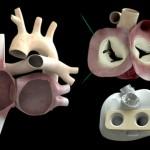 Искусственное сердце, работающее на чипе